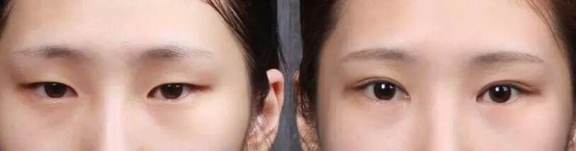 我想做个韩式开外眼角手术会不会留疤啊?