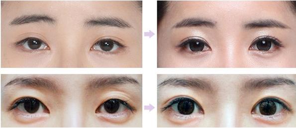 双眼皮失败修复其实不难,成镇模揭秘眼失败修复的最佳期
